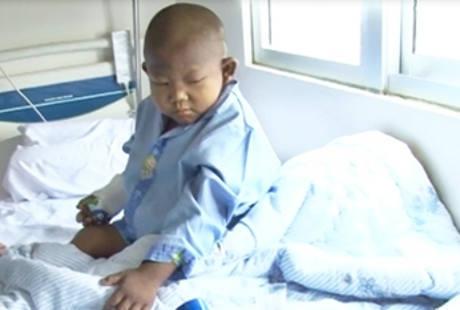 Ini Sebabnya Bocah Hafidz Meninggal Meski Sukses Transplantasi Hati