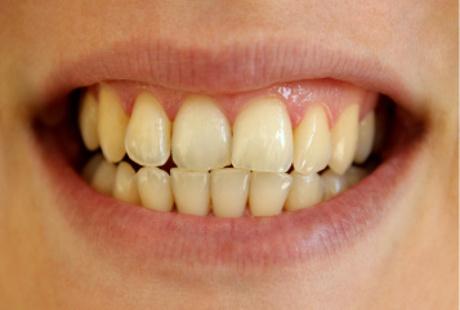 Begini Cara Memutihkan Gigi Dengan Langkah Yang Mudah