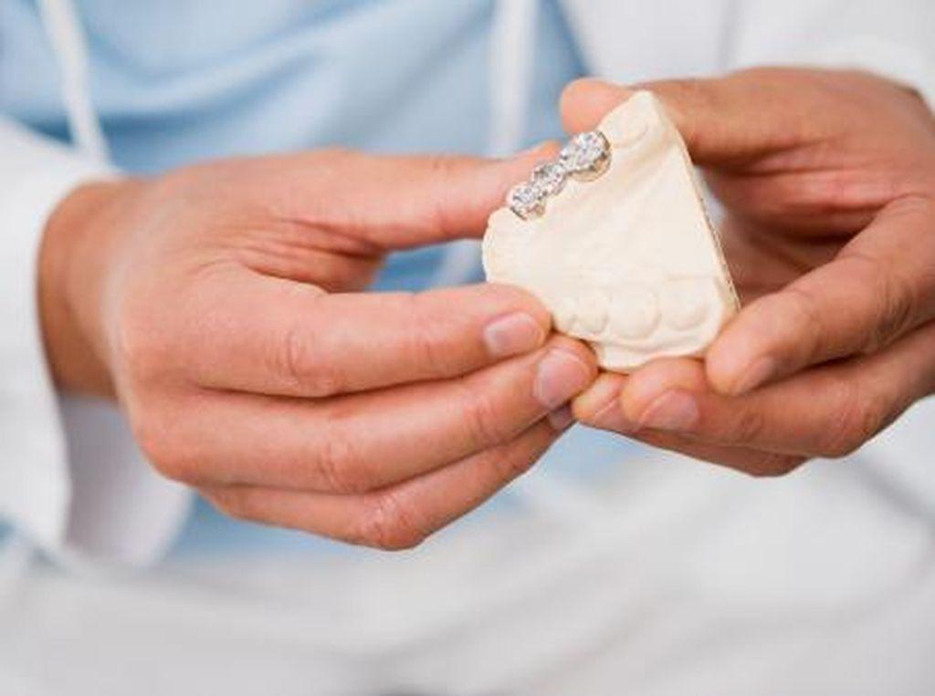 Hati-hati, Ini Risiko Jika Malas Tambal Gigi yang Berlubang