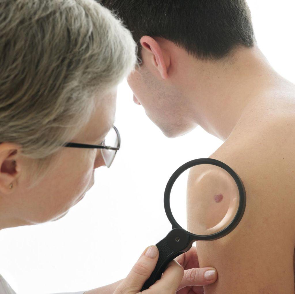 Dokter Sebut Masih Banyak Pasien yang Belum Maksimal Lindungi Kulitnya