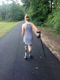 Aimee menggunakan tangan dan kaki prostetik untuk beraktivitas. Meski tidak semudah dulu menjalani hidup, namun Aimee bertekad untuk bangkit. Baginya ada hal indah di balik ketidaksempurnaan yang dimilikinya. (Foto: Facebook Aimee Copeland)