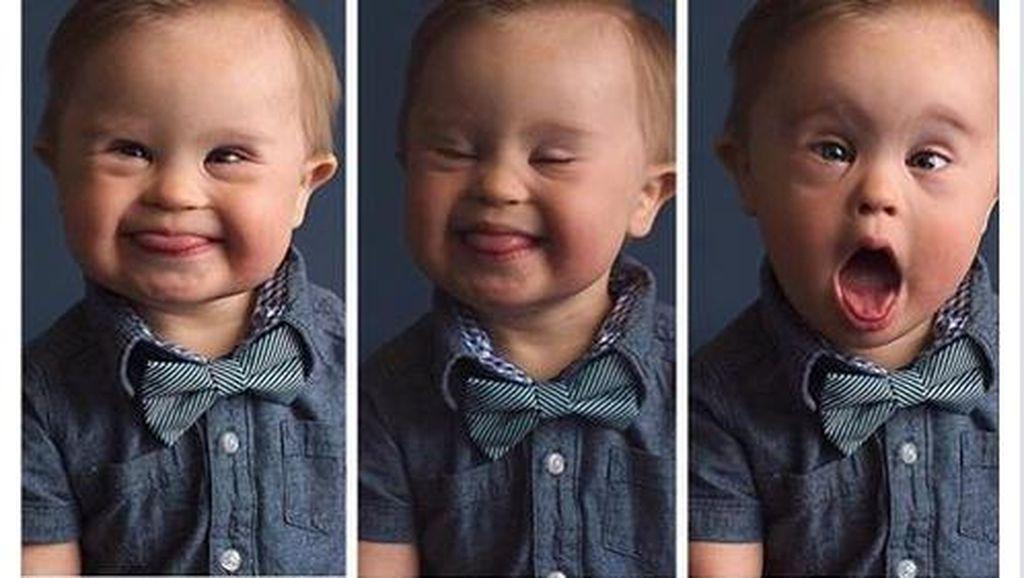 Foto Bayi dengan Down Syndrome yang Ditolak Agensi Iklan Ini Jadi Viral