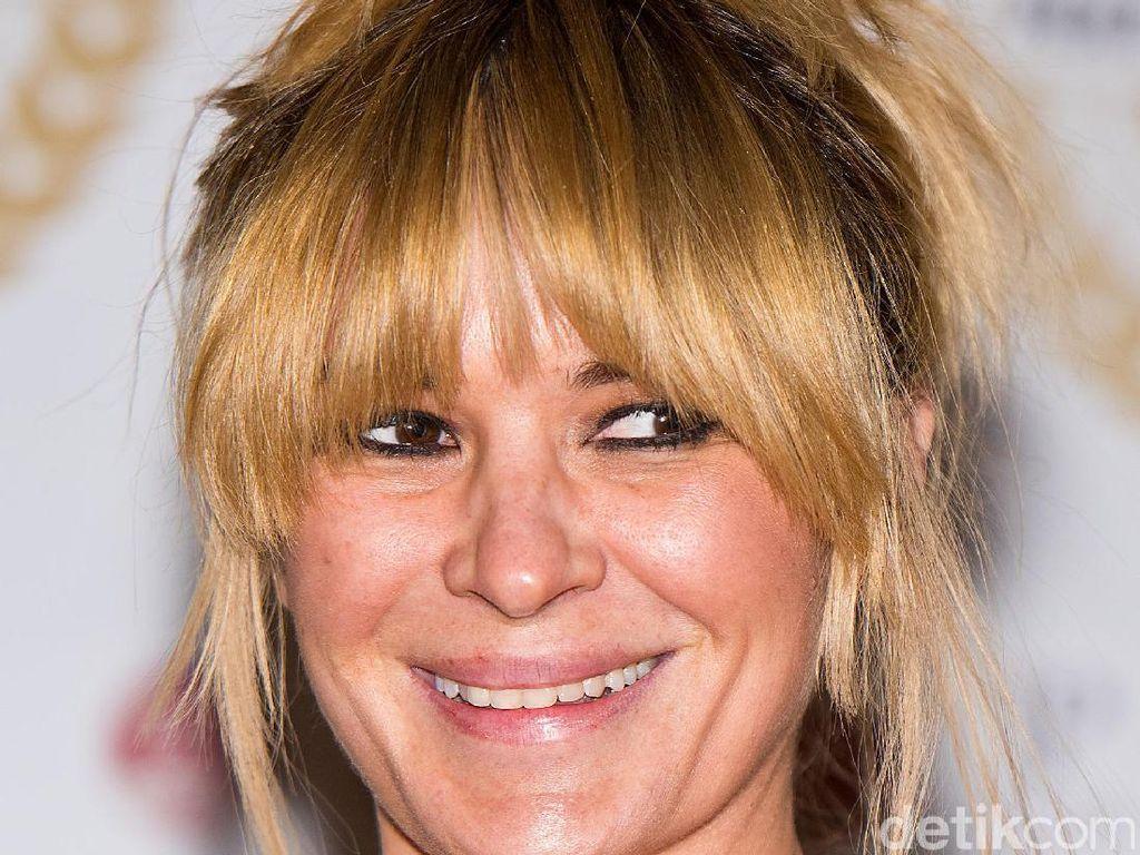 Kecanduan Minum Soda, 5 Gigi Aktris Inggris Ini Busuk