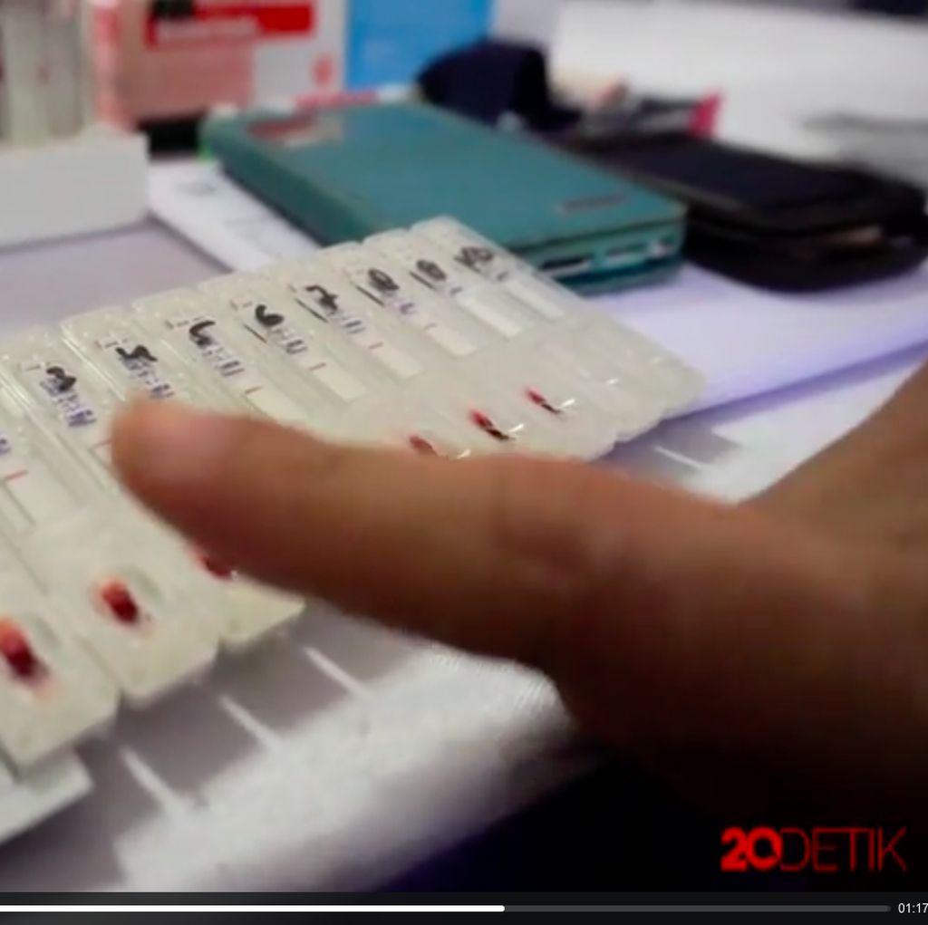 Sistem Imun Sapi Bisa Jadi Kunci Vaksin HIV