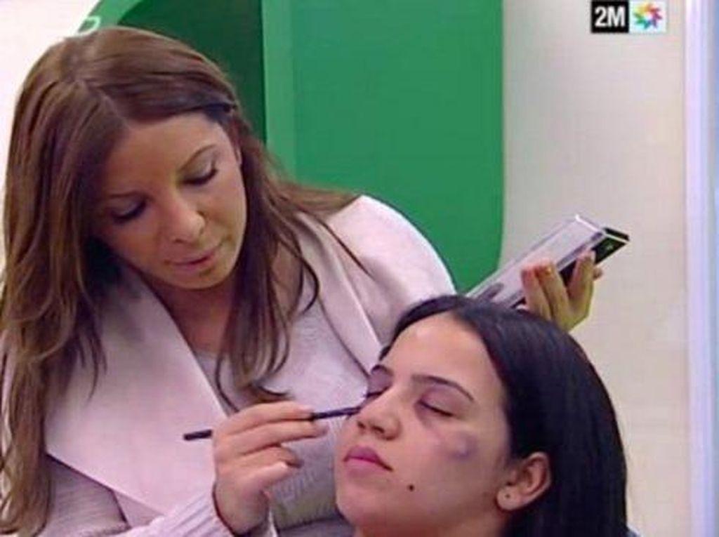 Tayangan TV Ini Dikritik Karena Tampilkan Tutorial Makeup untuk Korban KDRT