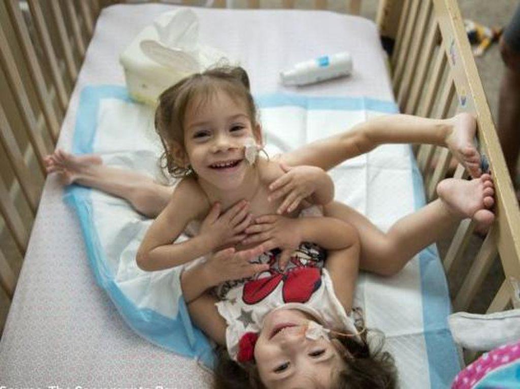 Jalani Operasi 18 Jam, Bocah Kembar Siam Ini Akhirnya Dipisahkan