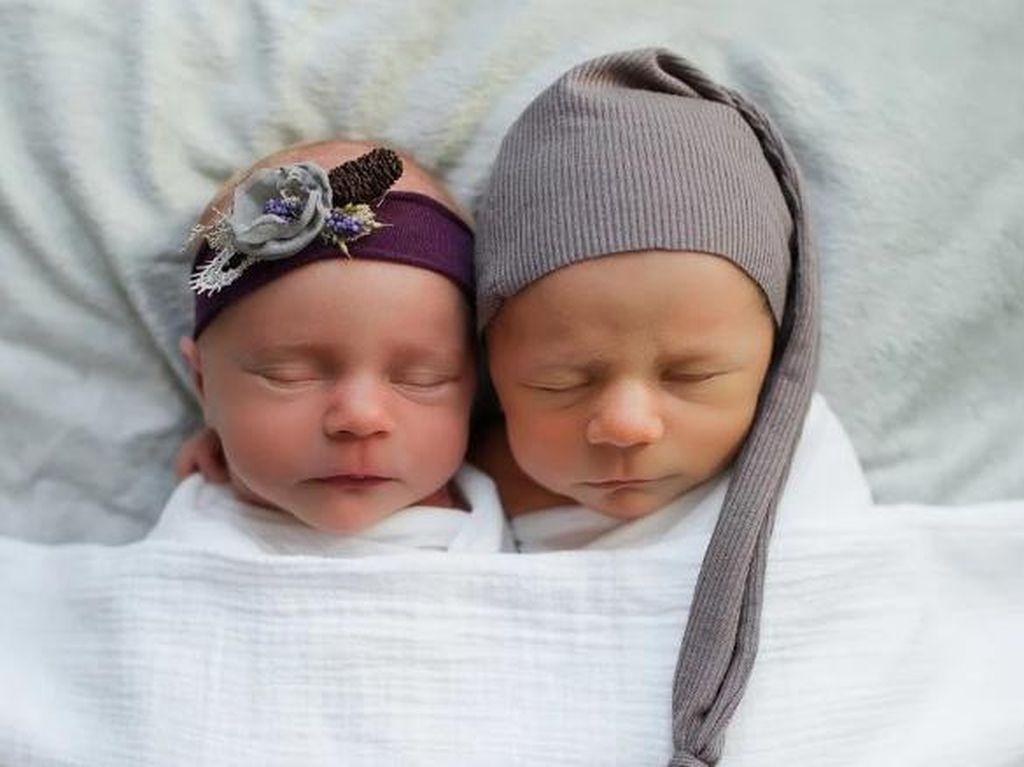 Kisah Sedih di Balik Foto Mempesona Sepasang Bayi Kembar