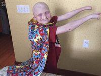 Oleh dokter, Ethan Kranig didiagnosis dengan sebuah kondisi bernama 'ectrodactyly ectodermal dysplasia-cleft syndrome' (EEC). Sederhananya EEC tak ubahnya bibir sumbing atau cleft, hanya saja cleft-nya terjadi di bagian tubuh lainnya. (Foto: YouCaring)