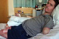 Alex Lewis, ayah satu anak asal Inggris, harus merelakan kedua kaki dan lengan kirinya diamputasi setelah kaki, jari, lengan, bibir, hidung, dan sebagian telinganya menghitam. Ia terinfeksi bakteri pemakan daging setelah hanya merasa demam dan flu biasa. (Foto: Facebook)